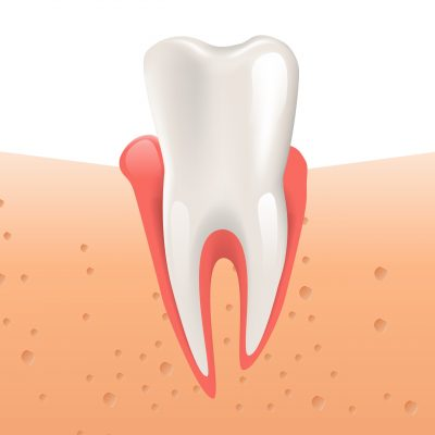 Realistic Illustration Gingivitis Healthy Tooth